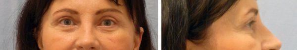 szemhéjplasztika